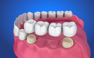 Repairing Teeth with Dental Crowns in Palatine, IL